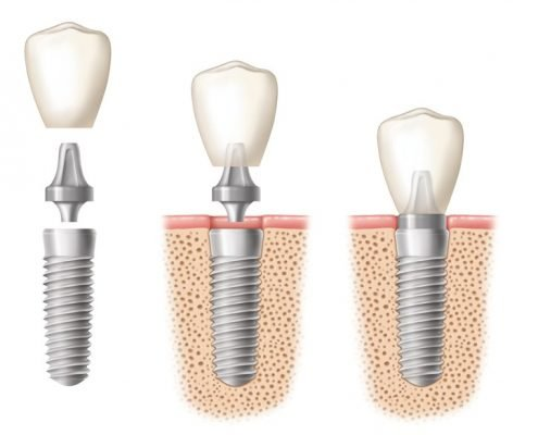 dental implants pretoria