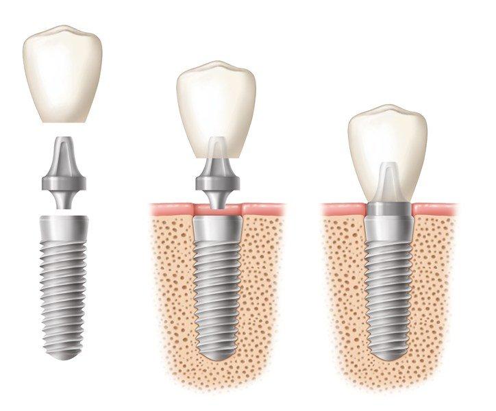 dental implants pretoria