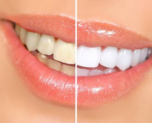 teeth whitening pretoria