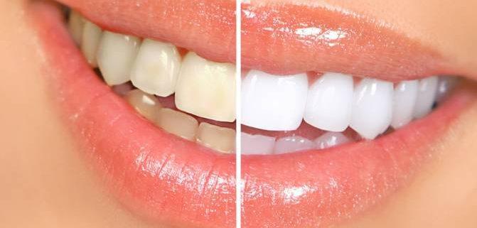 teeth whitening pretoria