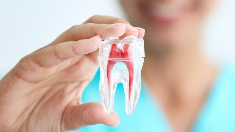 root canal treatment pretoria
